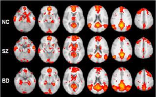 fMRI - BiPolars, Schizophrenics
