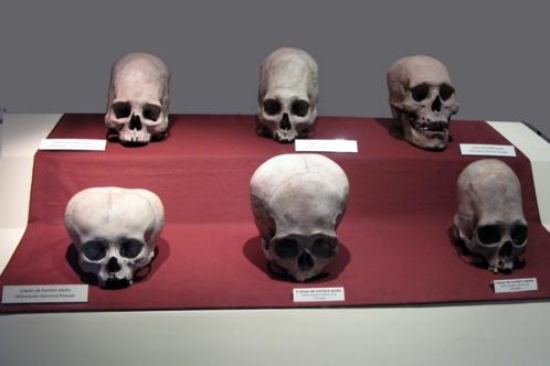 Elongated Paracas Skulls